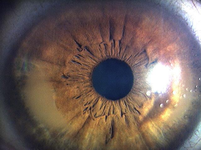 帯状角膜変性症オペ後